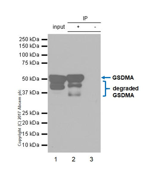Immunoprecipitation - Anti-GSDMA antibody [EPR19858-17] (ab214818)