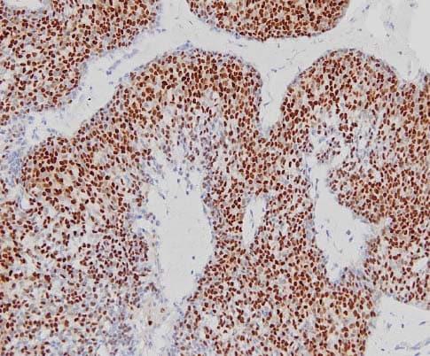 Immunohistochemistry (Formalin/PFA-fixed paraffin-embedded sections) - Goat Anti-Rabbit IgG H&L (HRP polymer) (ab214880)