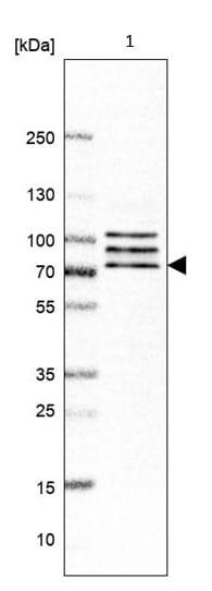Western blot - Anti-CNOT4 antibody (ab214937)