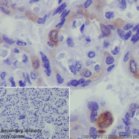 Immunohistochemistry (Formalin/PFA-fixed paraffin-embedded sections) - Anti-PEG10/EDR antibody [EPR20051] (ab215035)