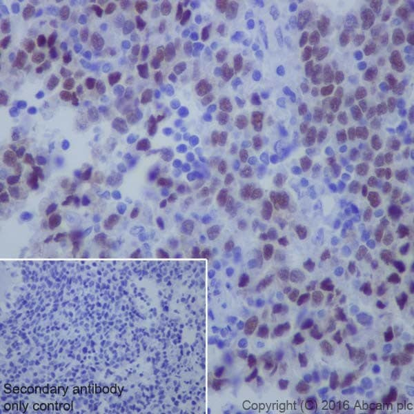 Immunohistochemistry (Formalin/PFA-fixed paraffin-embedded sections) - Anti-KLF4 antibody [EPR19590] (ab215036)