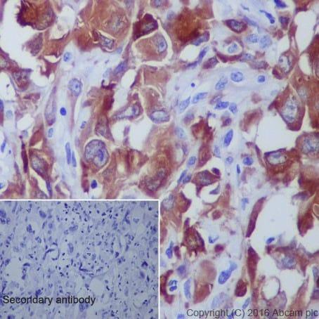 Immunohistochemistry (Formalin/PFA-fixed paraffin-embedded sections) - Anti-beta III Tubulin antibody [EPR19591] (ab215037)