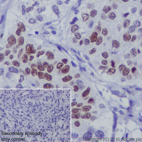 Immunohistochemistry (Formalin/PFA-fixed paraffin-embedded sections) - Anti-p73 antibody [EPR19884] - ChIP Grade (ab215038)