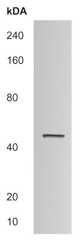 Western blot - Anti-CCBL1 antibody (ab215056)