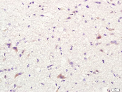 Immunohistochemistry (Formalin/PFA-fixed paraffin-embedded sections) - Anti-CD80 antibody (ab215166)