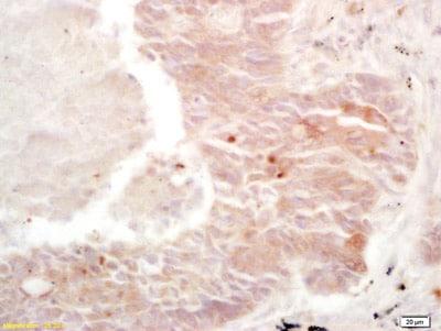 Immunohistochemistry (Formalin/PFA-fixed paraffin-embedded sections) - Anti-C10orf46/CAC1 antibody (ab215168)