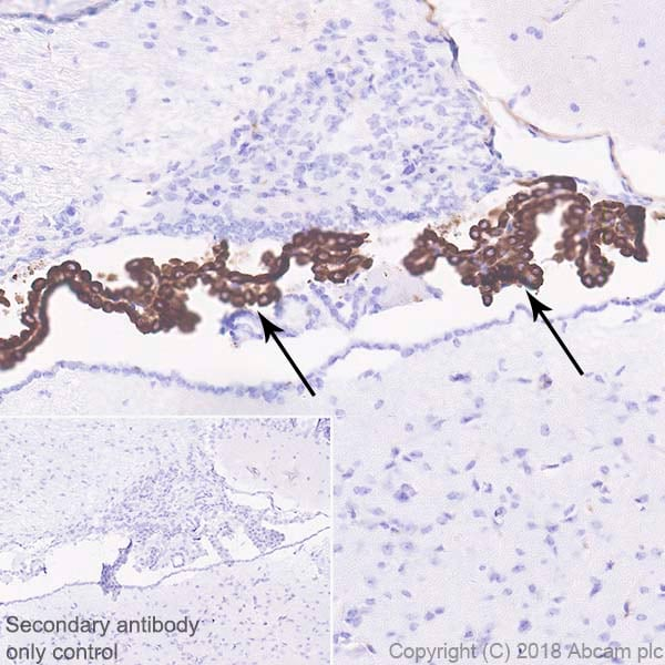 Immunohistochemistry (Formalin/PFA-fixed paraffin-embedded sections) - Anti-Prealbumin antibody [EPR20971] (ab215202)