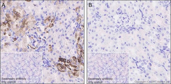 Immunohistochemistry (Formalin/PFA-fixed paraffin-embedded sections) - Anti-RPS6 (phospho S240 + S244) antibody [EPR20770] (ab215214)