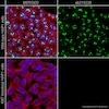 Immunocytochemistry - Alexa Fluor® 555 Anti-Ki67 antibody [EPR3610] (ab215226)