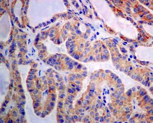 Immunohistochemistry (Formalin/PFA-fixed paraffin-embedded sections) - Anti-GBA antibody [EPR5143(3)] - BSA and Azide free (ab215260)