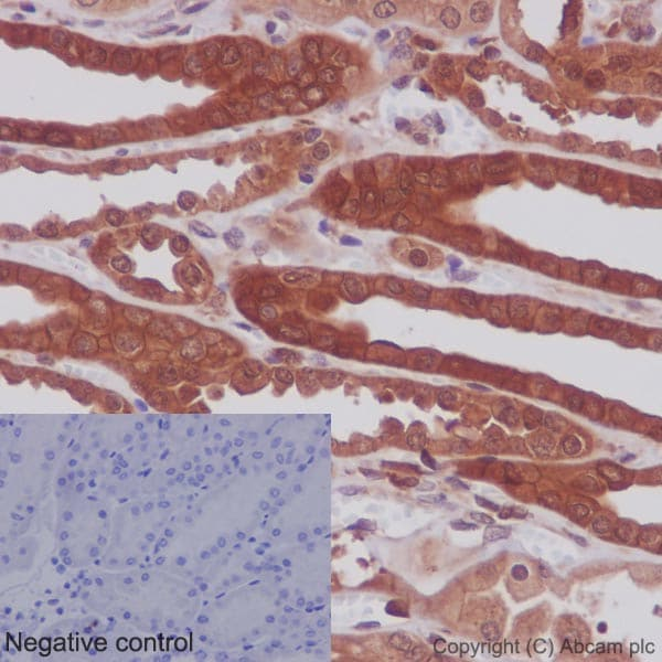Immunohistochemistry (Formalin/PFA-fixed paraffin-embedded sections) - Anti-MEK1 + MEK2 antibody [EPR16667] - BSA and Azide free (ab215263)