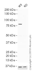 Western blot - HRP Anti-VPS35 antibody [EPR11501(B)] (ab215340)