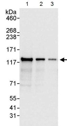 Western blot - Anti-BubR1 antibody (ab215351)