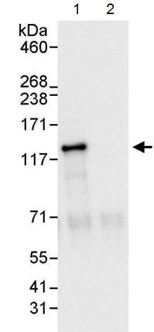 Immunoprecipitation - Anti-BubR1 antibody (ab215351)