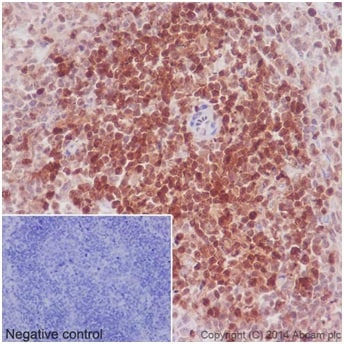 Immunohistochemistry (Formalin/PFA-fixed paraffin-embedded sections) - Anti-STAT5a + STAT5b antibody [EPR16671-40] - BSA and Azide free (ab215367)