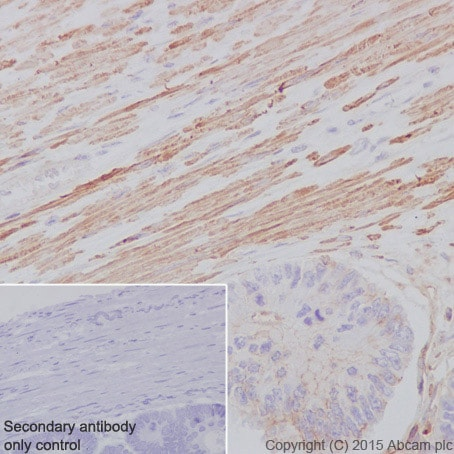 Immunohistochemistry (Formalin/PFA-fixed paraffin-embedded sections) - Anti-alpha smooth muscle Actin antibody [E184] - BSA and Azide free (ab215368)