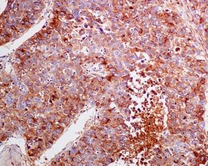 Immunohistochemistry (Formalin/PFA-fixed paraffin-embedded sections) - Anti-alpha 1 Fetoprotein antibody [EPAFP61] - Low endotoxin, Azide free (ab215379)