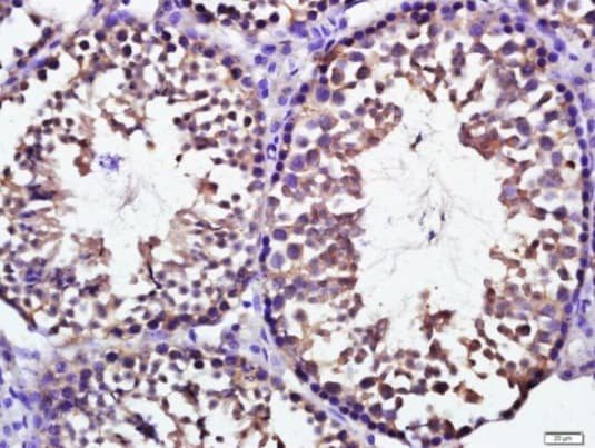 Immunohistochemistry (Formalin/PFA-fixed paraffin-embedded sections) - Anti-KCTD19 antibody (ab215433)