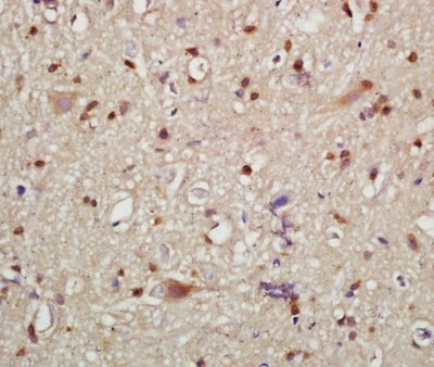 Immunohistochemistry (Formalin/PFA-fixed paraffin-embedded sections) - Anti-HMGCR (phospho S872) antibody (ab215437)