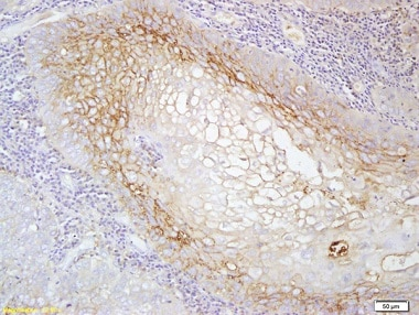 Immunohistochemistry (Formalin/PFA-fixed paraffin-embedded sections) - Anti-MCSF Receptor antibody (ab215441)