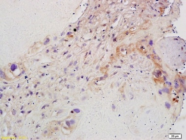 Immunohistochemistry (Formalin/PFA-fixed paraffin-embedded sections) - Anti-Aromatase antibody (ab215443)