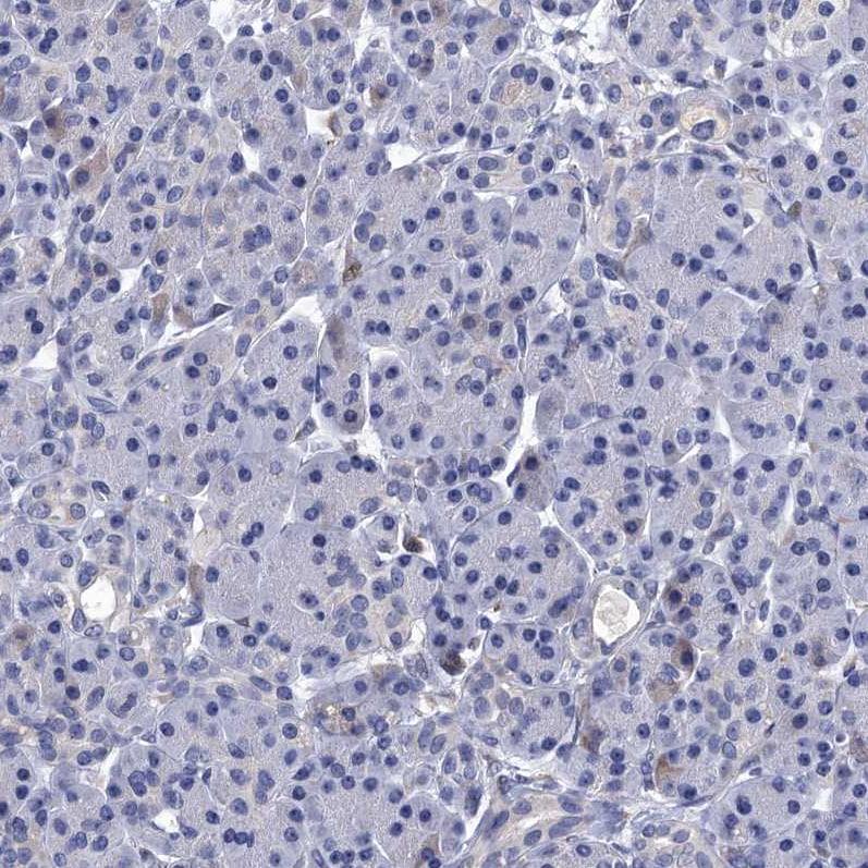 Immunohistochemistry (Formalin/PFA-fixed paraffin-embedded sections) - Anti-SPON2 antibody (ab215451)