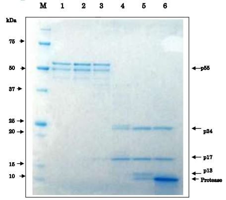 SDS-PAGE - Recombinant HIV1 Protease protein (ab215523)