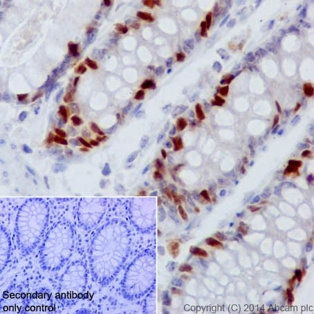Immunohistochemistry (Formalin/PFA-fixed paraffin-embedded sections) - Anti-Rb (phospho S807) antibody [EPR17732] - BSA and Azide free (ab215530)