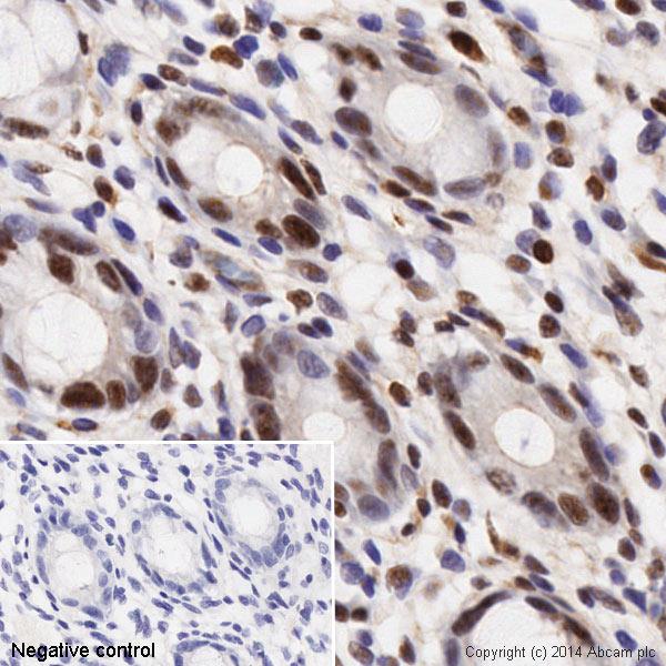 Immunohistochemistry (Formalin/PFA-fixed paraffin-embedded sections) - Anti-Histone H3 (phospho S28) antibody [E191] - BSA and Azide free (ab215532)