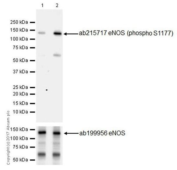 Western blot - Anti-eNOS (phospho S1177) antibody [EPR20991] (ab215717)