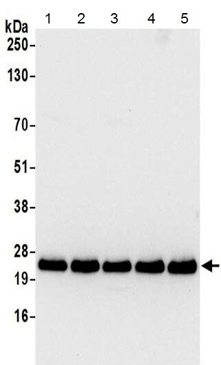 Western blot - Anti-RPL21 antibody - N-terminal (ab215724)