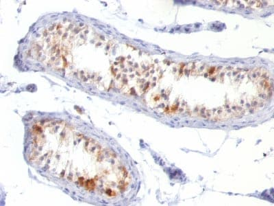 Immunohistochemistry (Formalin/PFA-fixed paraffin-embedded sections) - Anti-MelanA antibody [MLANA/788] (ab215756)