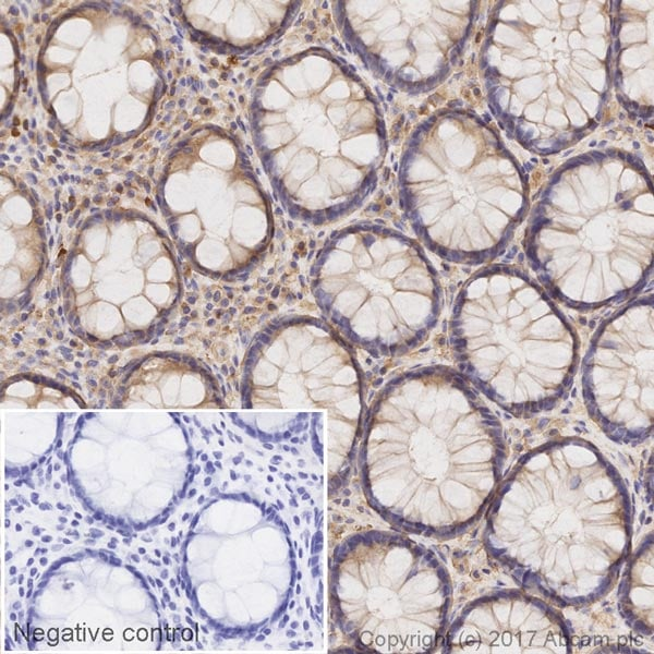 Immunohistochemistry (Formalin/PFA-fixed paraffin-embedded sections) - Anti-HIF-1 alpha antibody [ESEE122] (HRP) (ab215773)