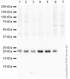 Western blot - Anti-CDC42 antibody [EPR15620] (HRP) (ab215810)