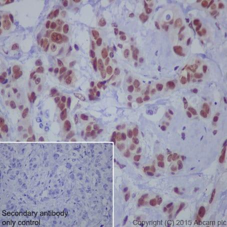 Immunohistochemistry (Formalin/PFA-fixed paraffin-embedded sections) - Anti-STAT1 (phospho S727) antibody [EPR3146] - BSA and Azide free (ab215820)