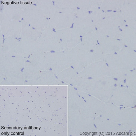 Immunohistochemistry (Formalin/PFA-fixed paraffin-embedded sections) - Anti-CD63 antibody [EPR5702] - BSA and Azide free (ab215821)
