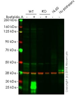 Western blot - Anti-CD63 antibody [EPR5702] - BSA and Azide free (ab215821)