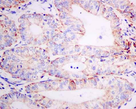 Immunohistochemistry (Formalin/PFA-fixed paraffin-embedded sections) - Anti-AUH antibody [EPR11087(B)] - BSA and Azide free (ab215823)