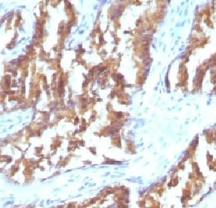 Immunohistochemistry (Formalin/PFA-fixed paraffin-embedded sections) - Anti-IDH1 antibody [IDH1/1152] (ab215829)