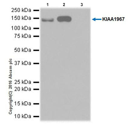 Immunoprecipitation - Anti-DBC-1 antibody [EPR19747] (ab215852)