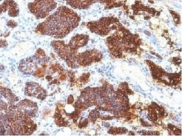 Immunohistochemistry (Formalin/PFA-fixed paraffin-embedded sections) - Anti-Parathyroid Hormone antibody [PTH/1175] - C-terminal (ab215856)