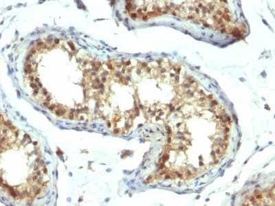 Immunohistochemistry (Formalin/PFA-fixed paraffin-embedded sections) - Anti-PAX7 antibody [PAX7/1187] - BSA and Azide free (ab215863)