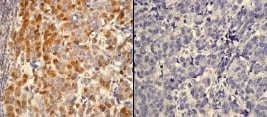 Immunohistochemistry (Formalin/PFA-fixed paraffin-embedded sections) - Anti-AKT1 (phospho S473) antibody [EP2109Y] - BSA and Azide free (ab215873)