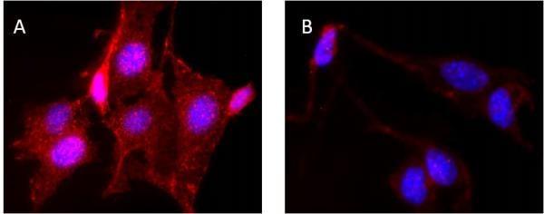 Immunocytochemistry/ Immunofluorescence - Anti-AKT1 (phospho S473) antibody [EP2109Y] - BSA and Azide free (ab215873)