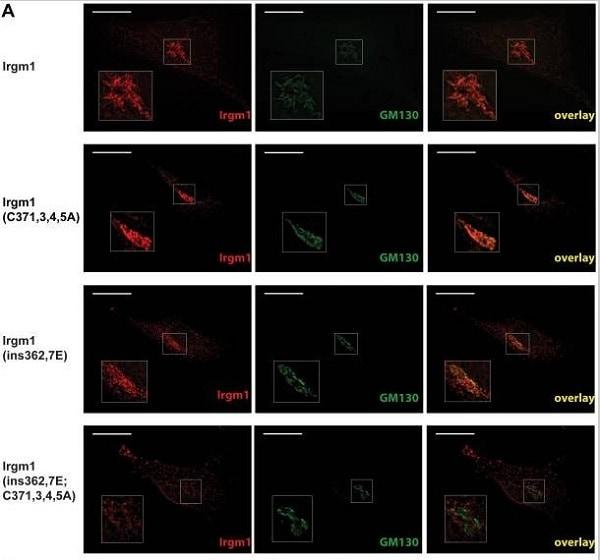 Immunocytochemistry/ Immunofluorescence - Anti-GM130 antibody [EP892Y] - BSA and Azide free (ab215966)