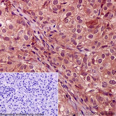 Immunohistochemistry (Formalin/PFA-fixed paraffin-embedded sections) - Anti-Smad4 antibody [EP618Y] - BSA and Azide free (ab215968)