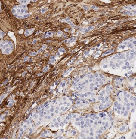 Immunohistochemistry (Formalin/PFA-fixed paraffin-embedded sections) - Anti-Collagen I antibody [EPR7785] - BSA and Azide free (ab215969)