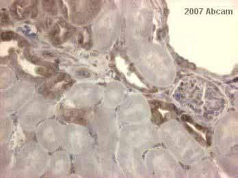 Immunohistochemistry (Formalin/PFA-fixed paraffin-embedded sections) - Anti-IKB alpha antibody [E130] - BSA and Azide free (ab215972)