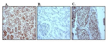 Immunohistochemistry (Formalin/PFA-fixed paraffin-embedded sections) - Anti-Pax2 antibody [EP3251] - BSA and Azide free (ab215974)