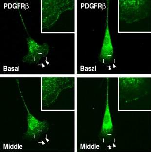 Immunocytochemistry/ Immunofluorescence - Anti-PDGFR beta antibody [Y92] - Low endotoxin, Azide free (ab215978)